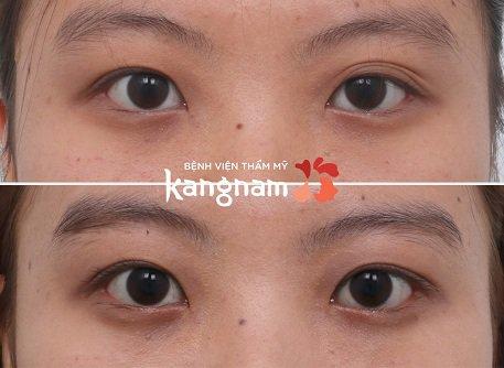 bấm mí mắt dove eyes