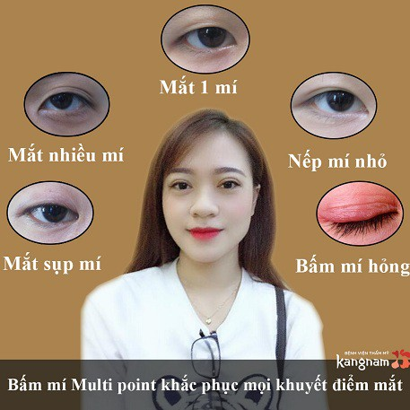 nhấn mí multi point