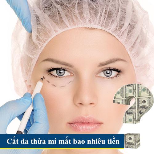 cắt da thừa mí mắt bao nhiêu tiền? 1