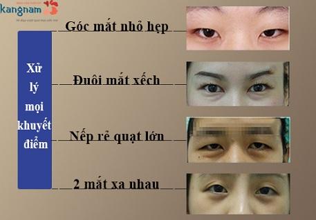 phẫu thuật cắt khóe mắt