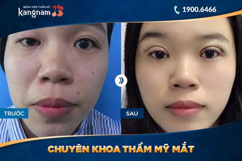 chuyên khoa thẩm mỹ mắt bệnh viện thẩm mỹ kangnam 2