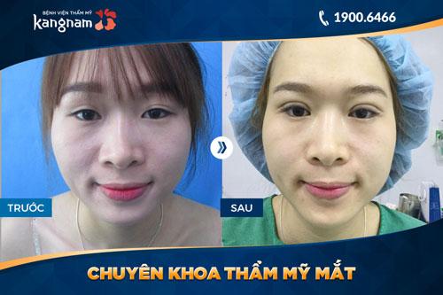 chuyên khoa thẩm mỹ mắt bệnh viện thẩm mỹ kangnam 7
