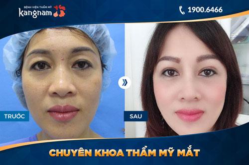 chuyên khoa thẩm mỹ mắt bệnh viện thẩm mỹ kangnam 8