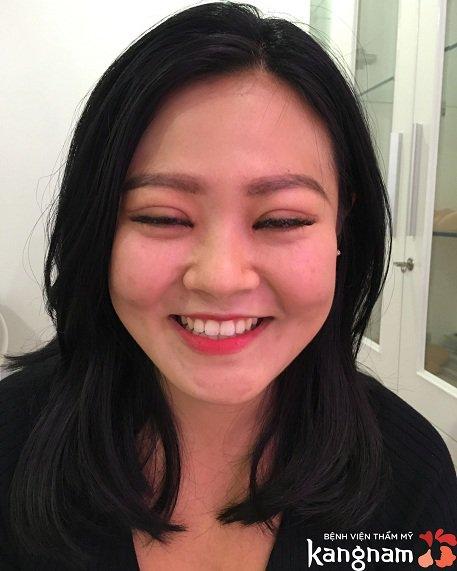 khách hàng bấm mí Kangnam
