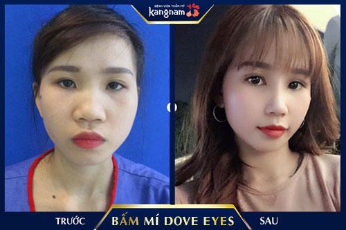 bấm mí dove eyes kangnam