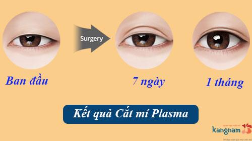 Phẫu thuật cắt mắt 2 mí