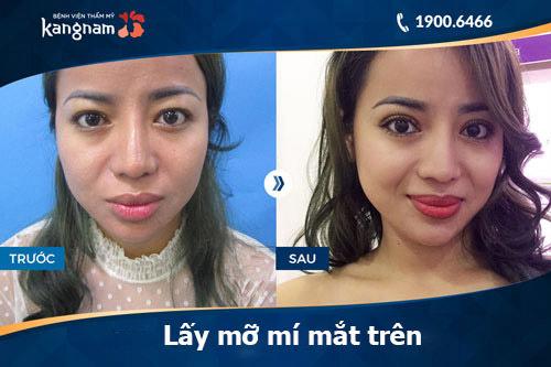 Giá cắt mỡ mắt bao nhiêu tiền