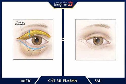 cắt mắt 2 mí kangnam