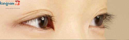 mắt có nhiều mí 6