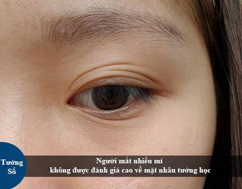 Mắt nhiều mí nói lên điều gì