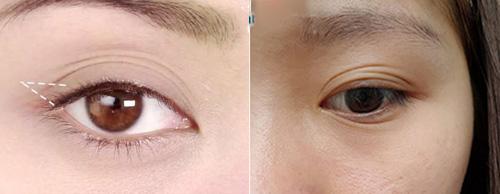 mắt nhiều mí 5