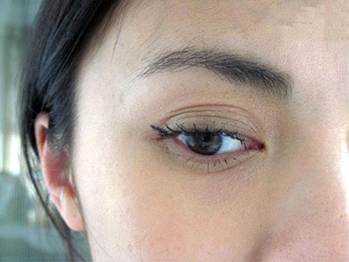 mắt nhiều mí 6