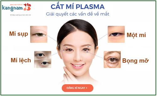 Phẫu thuật cắt mí Plasma