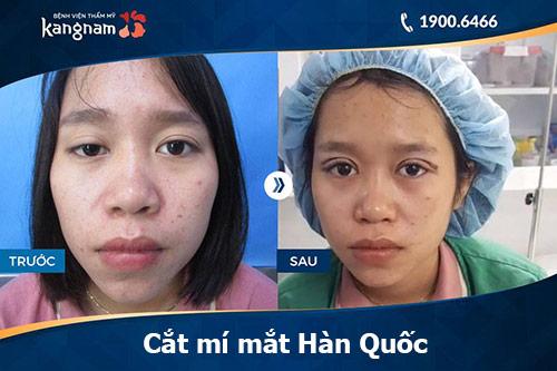 phẫu thuật cắt mí mắt hàn quốc 1
