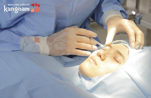 phẫu thuật cắt mí hàn quốc 2