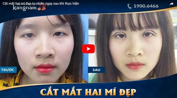 Video khách hàng cắt mắt 2 mí đẹp tại BVTM Kangnam