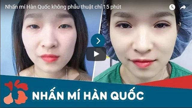 Video nhân mí mắt Hàn Quốc không phẫu thuật