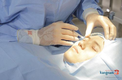 cắt mắt 2 mí có để lại sẹo không 4