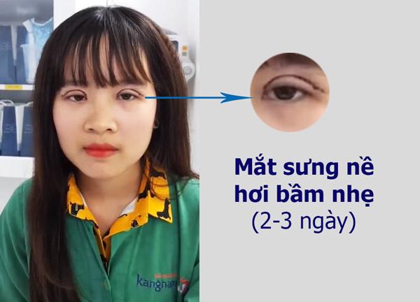 cắt mí mắt có ảnh hưởng gì không 1