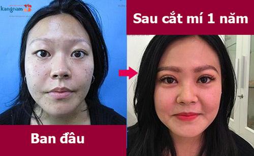 cắt mí mắt có ảnh hưởng gì không 2