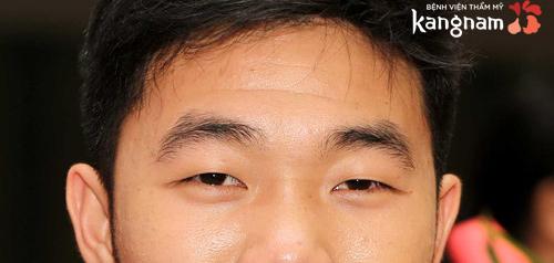 mắt híp là gì