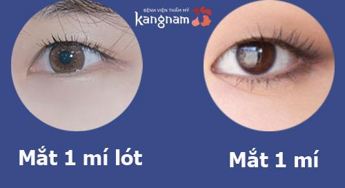 mắt một mí 2