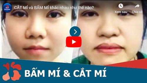 VIDEO So sánh cắt mí và bấm mí mắt tại Kangnam