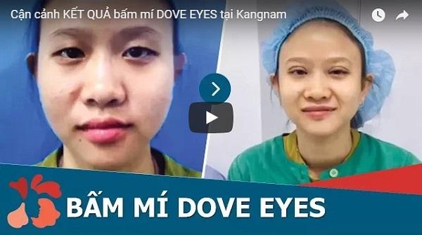 Video bấm mí mắt Dove Eyes