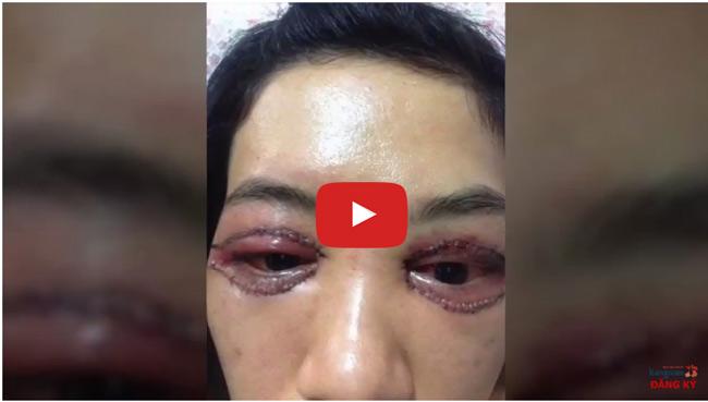 Video khách hàng tạo mắt hai mí bằng cắt mí mắt