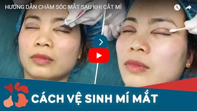 Video cắt mí mắt có đau không 2
