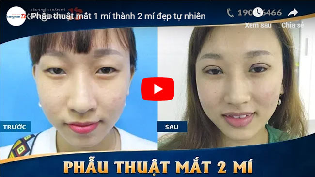 Video chữa mắt híp 2