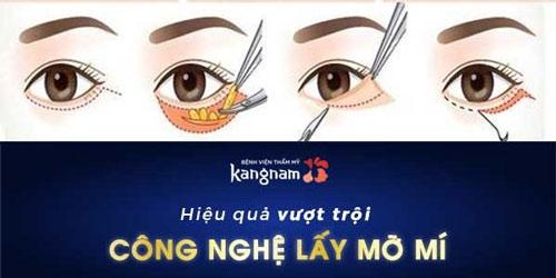 cách chữa bọng mắt