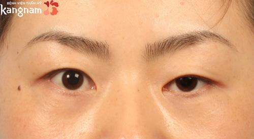 cắt mí mắt có ảnh hưởng tướng số 1