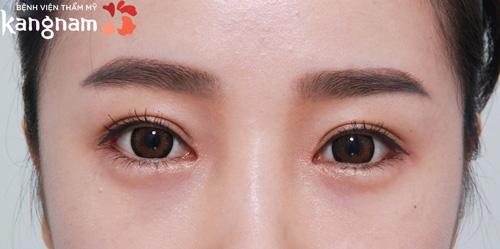 cắt mí mắt có ảnh hưởng tướng số 2