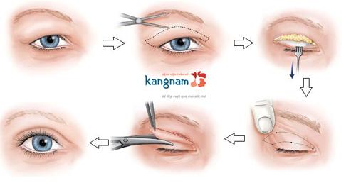 cắt mỡ mí mắt có nguy hiểm không 2