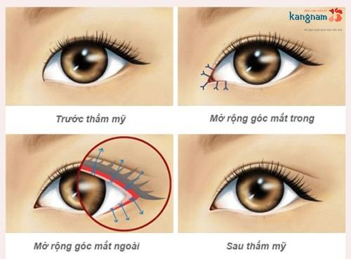 có nên phẫu thuật mắt to mắt nhỏ không 1