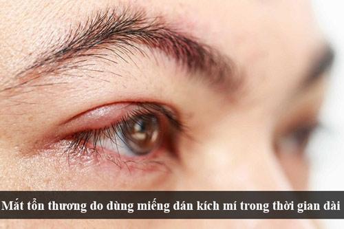 mắt 1 mí rưỡi 2