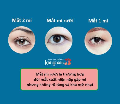 mắt mí rưỡi 1