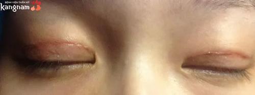 nhấn mí mắt bị hỏng