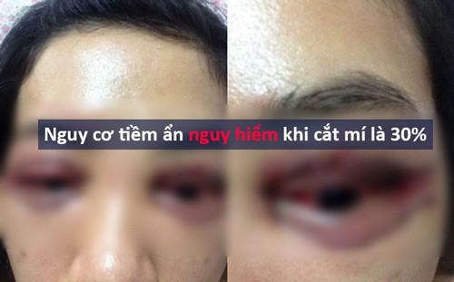 Phẫu thuật cắt mí mắt có nguy hiểm không 1