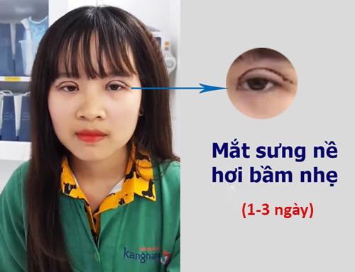 Phẫu thuật mắt to có đau không 2