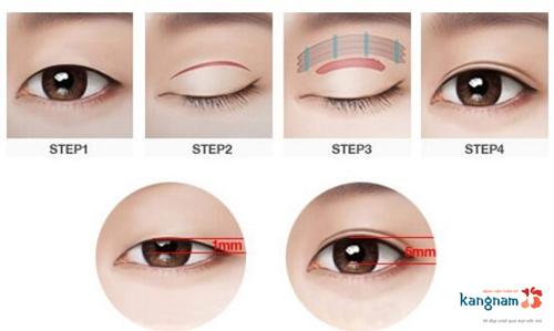 Phẫu thuật mắt to có nguy hiểm không 1