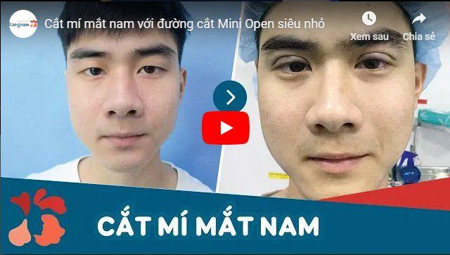Video kết quả cắt mí mắt nam tại BVTM Kangnam