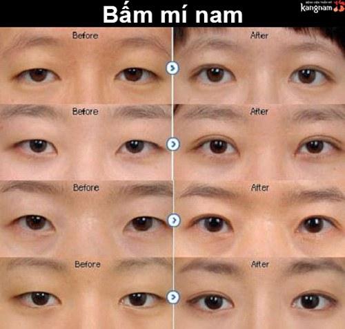 Nhấn mí mắt cho nam giới