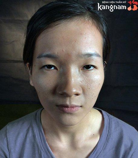 con gái mắt lươn