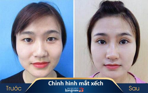 Phẫu thuật chỉnh hình mắt xếch