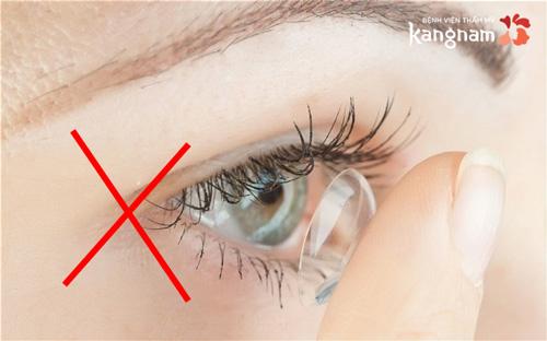 mắt bị lẹo 3