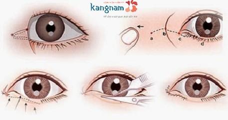 Phẫu thuật thẩm mỹ mắt to có để lại sẹo không