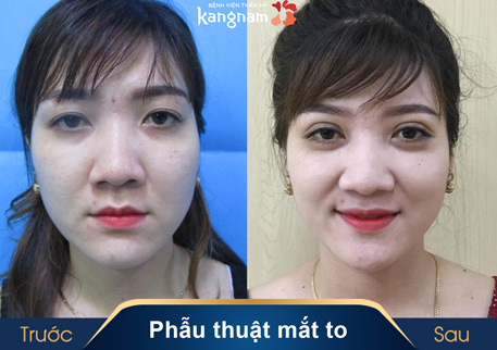 Phẫu thuật mắt to có để lại sẹo không 1