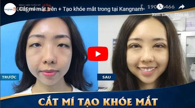 Video khắc phục mắt xếch bằng cắt mí và cắt khóe mắt